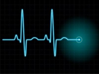 heart-rate-on-a-screen-EKG-machine